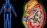 肾结石症状有哪些