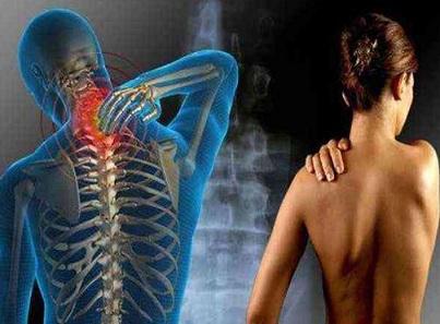 什么是纤维肌痛
